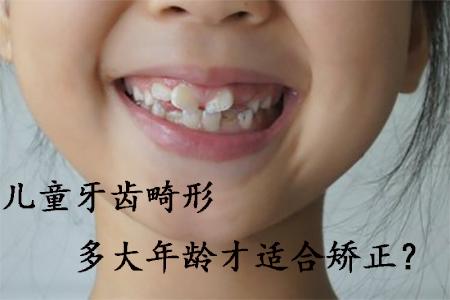 福州儿童牙齿畸形多大年龄才适合矫正