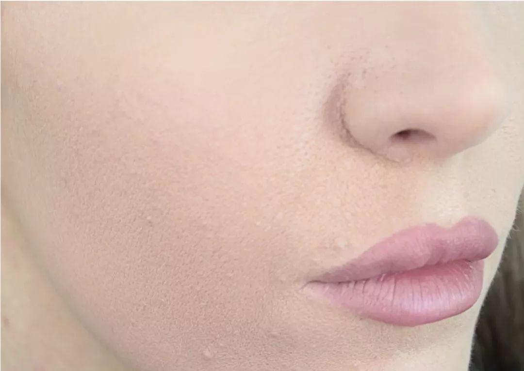 脸上起干皮像癣一样怎么回事 怎么改善 -敏感肌肤 Lady