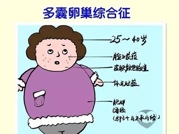 多囊卵巢综合征表现_多囊卵巢综合征患者该如何备孕?