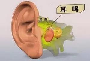⊙耳朵里面总是嗡嗡响,太烦了!,网站推广