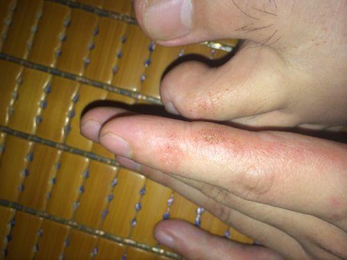 湿疹每年复发一次⊙夏天湿疹不好受,中医一方,解决湿疹不复发 ...,网站推广