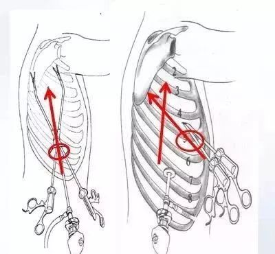 """【""""肺""""常对话】认识单孔胸腔镜肺部手术图片"""