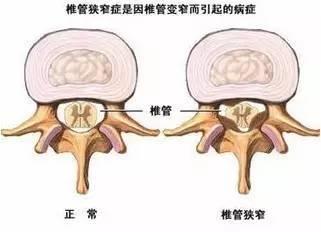 症 脊椎 狭窄