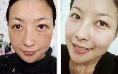 女人脸上长斑很显丑 现在教你一招,40岁还像美少女