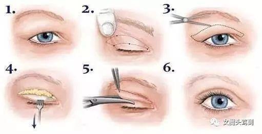 你必须要知道的关于双眼皮注意事项!