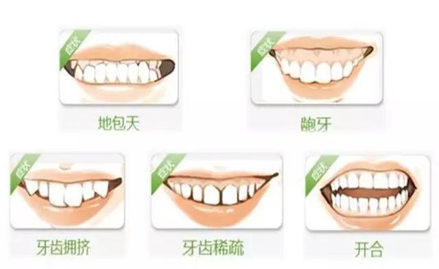 牙齿矫正可以治疗牙列拥挤,牙列稀疏,龅牙,反颌(地包天),开颌,牙不齐图片