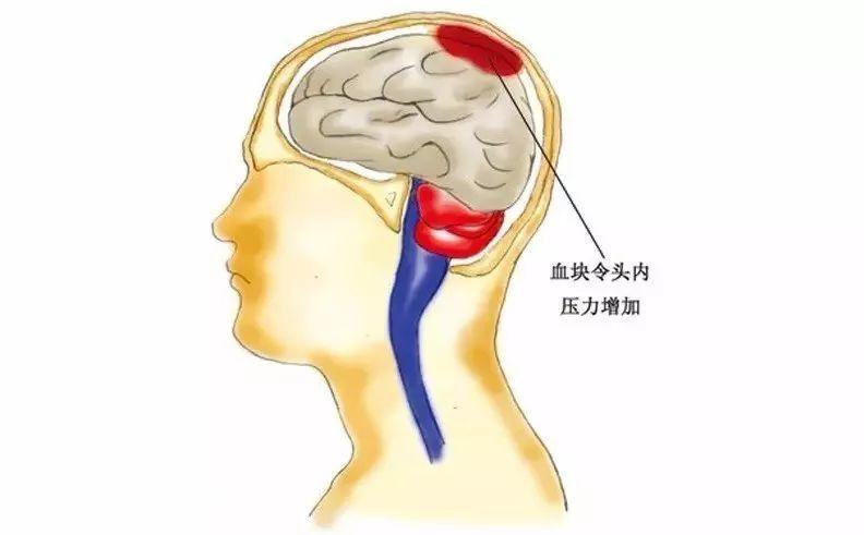 脑血管崩溃前有10个信号,千万别等半身不遂才看到!