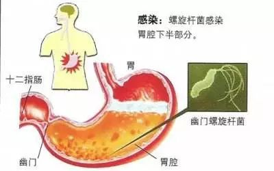 快速尿素酶试验的原理_快速尿素酶试验图片