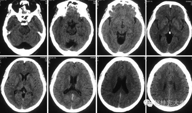 这例中枢神经淋巴瘤不典型,怎么办
