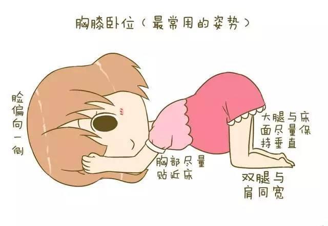 一,胸膝卧位 准妈妈穿上宽松的衣物,排空小便.图片