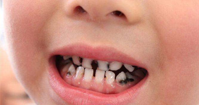 宝宝有蛀牙_宝宝有蛀牙?那可不全是吃糖的锅哦!