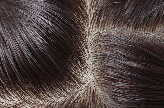 烫发后头发干枯怎么办 5个护理要点须知图片