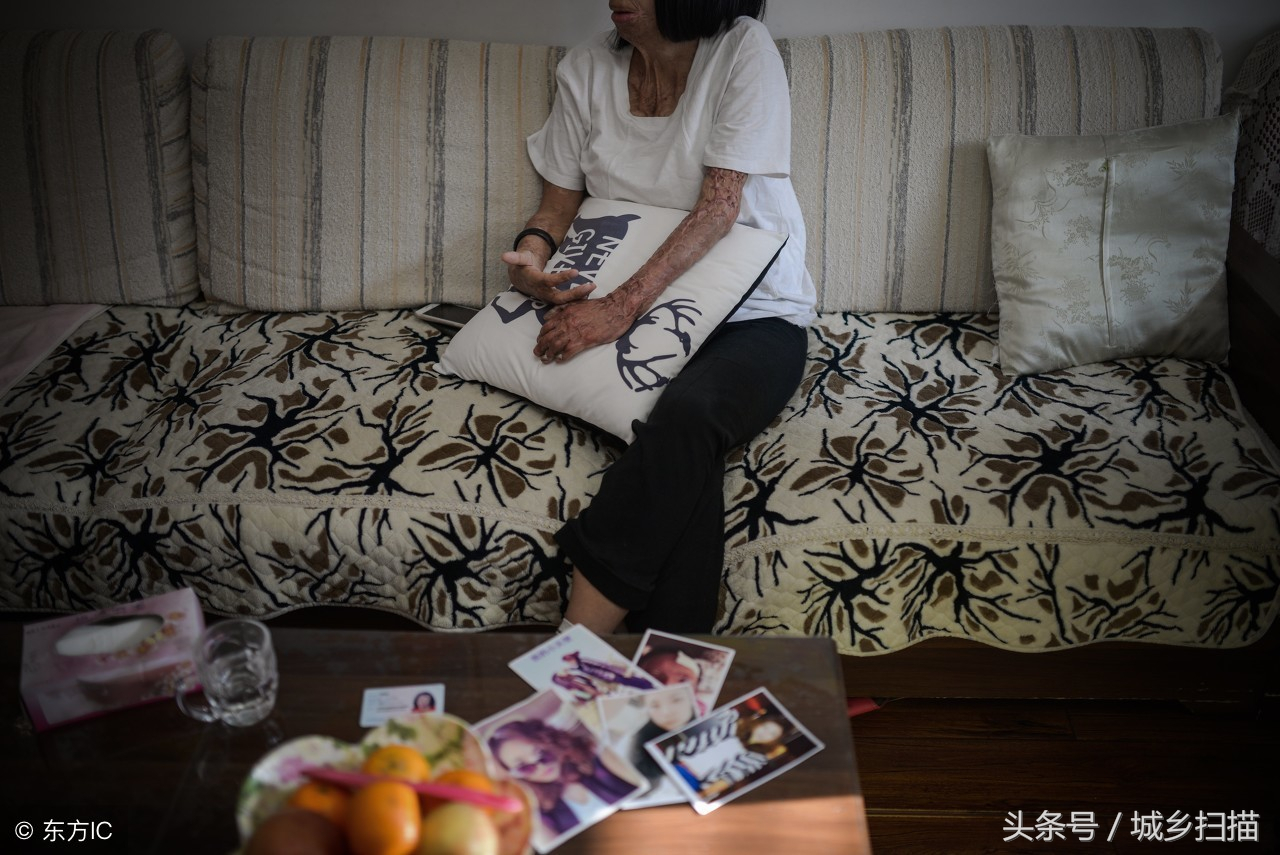 慘遭前男友潑硫酸毀容,32歲漂亮女子變「怪物」,開網絡直播賺錢-雪花新聞