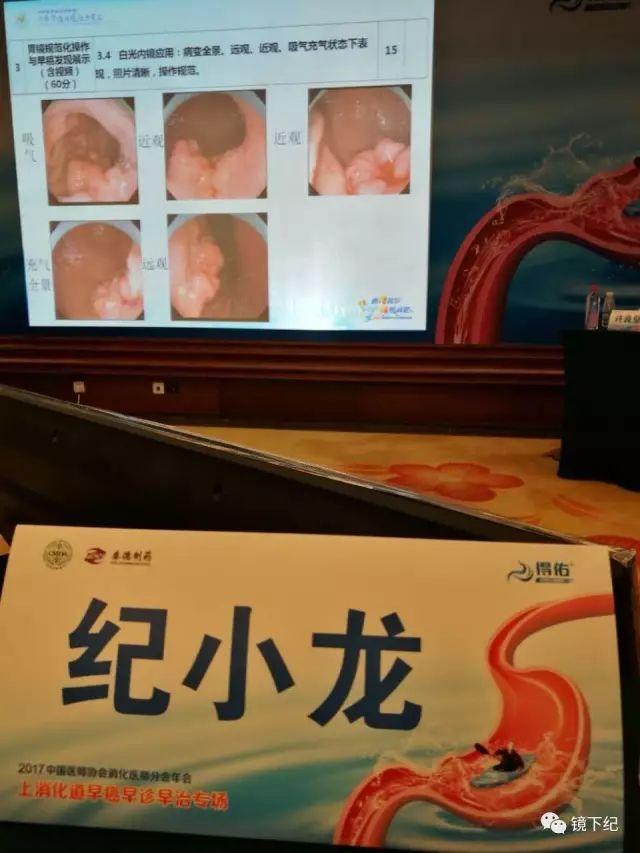 中国农民是胃镜检查的重点人群