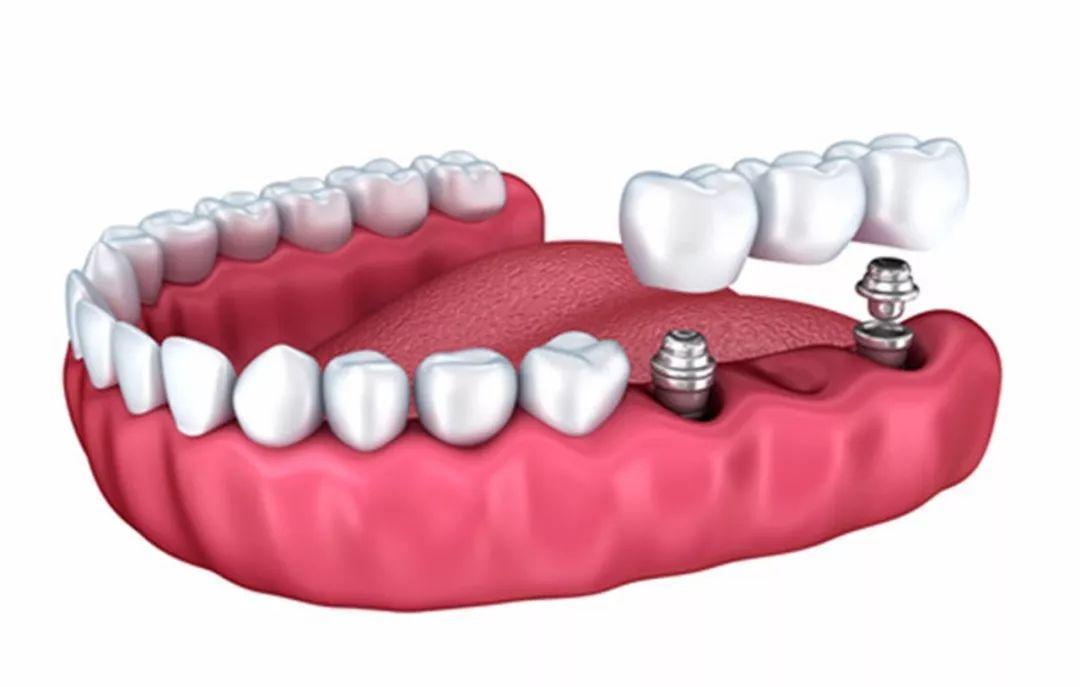 什么情况丨缺牙者患胃癌,肠癌的比例比牙齿健全者高30