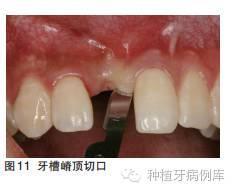 口腔种植手术学图解 组织切开与翻瓣