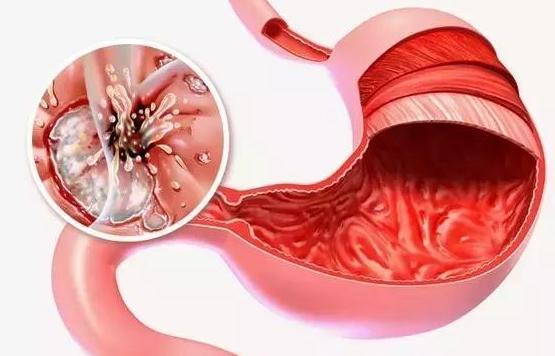 浅表性胃炎伴有胆汁反流?消化科医师:诊治与调养需同时进行