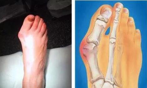最丑的脚趾