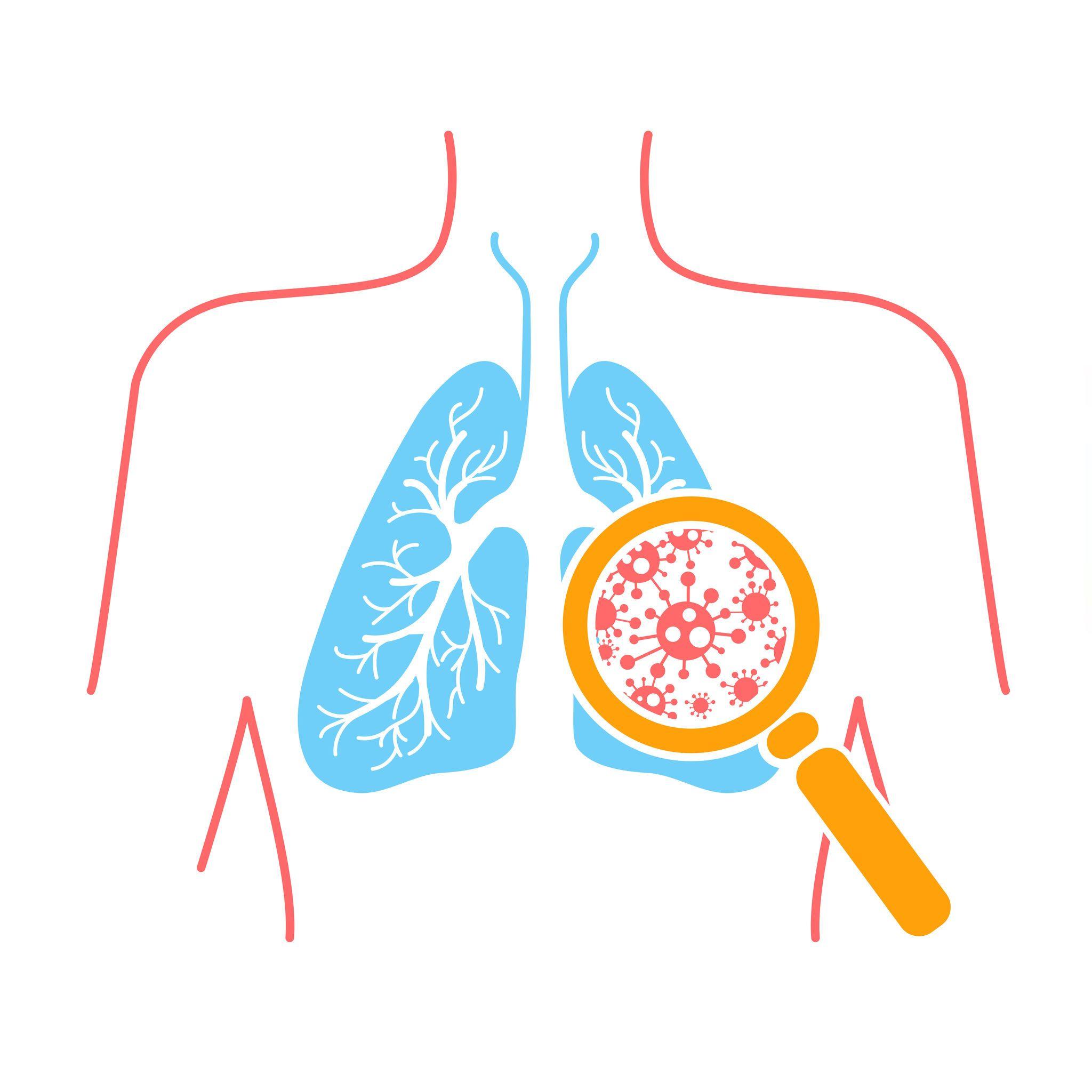 现哪些症状,应怀疑得了肺结核
