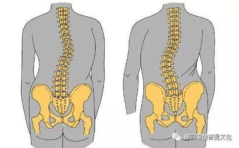 八个瑜伽拉伸体式改善脊柱侧弯!