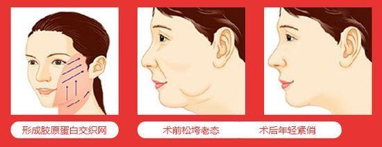 整形去双下巴的方法