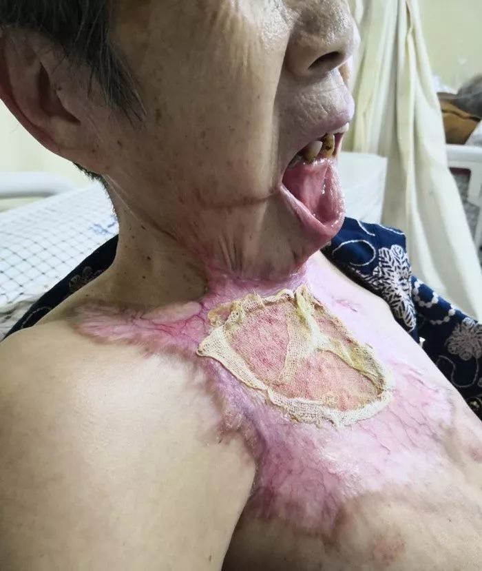 急!七旬老太被木炭火烧伤致下巴和胸部相连,吃饭喝水都成问题