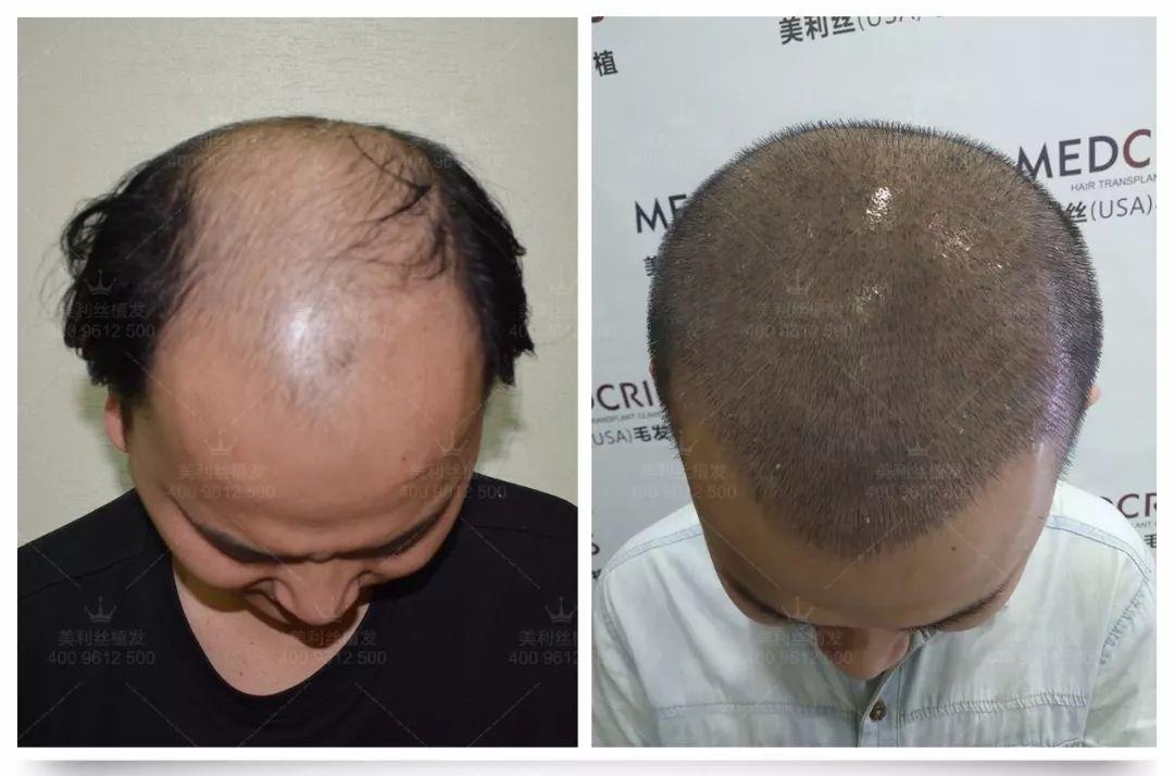 植发后头皮发热疼痛