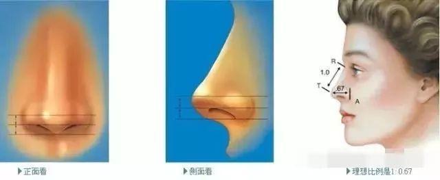 鼻整形专栏   鼻整形常用材料及其优缺点插图3