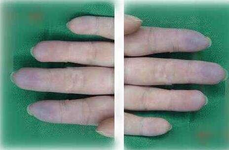 6,手掌颜色发青.