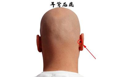 耳朵背后长痣面相图解