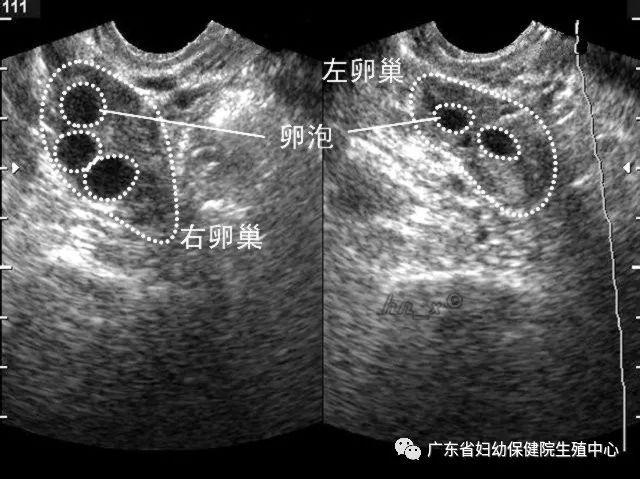 如何促排卵生双胞胎图片