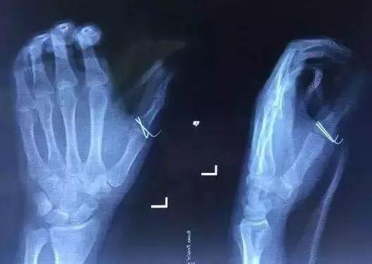 手指被可乐炸骨折原因竟是因为这样,以后千万不能这么做