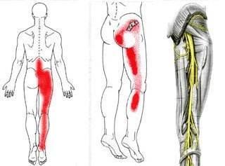 坐骨神经痛的锻炼方法有哪些