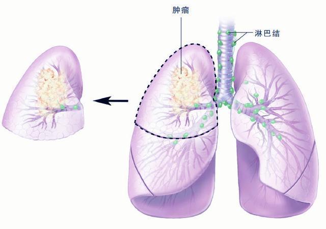 有关肺癌的7大焦点问题