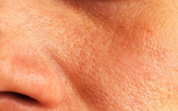 痛經、毛孔大到能塞芝麻,多喝1種水,痛經好瞭,毛孔縮到看不見