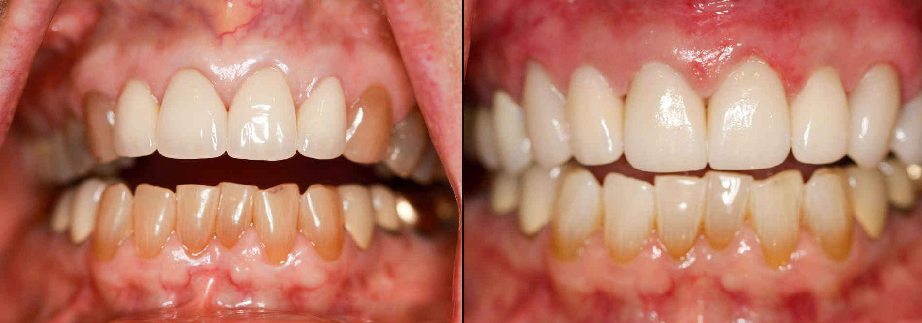 四环素牙能够洗掉吗?