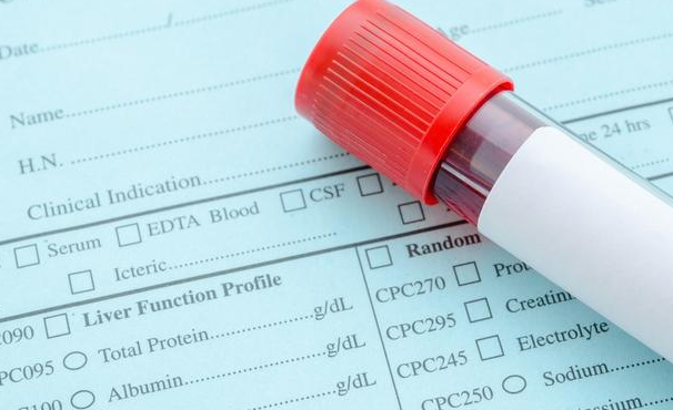 甘油三酯超標,血脂漲瞭一截,1食療方,每天吃點,血脂直線下降