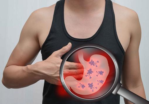 胃癌发现多数是晚期,若身体出现这6大信号,小心胃癌正在靠近!