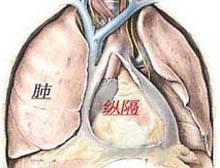 纵膈肿瘤:常见5种临床表现!