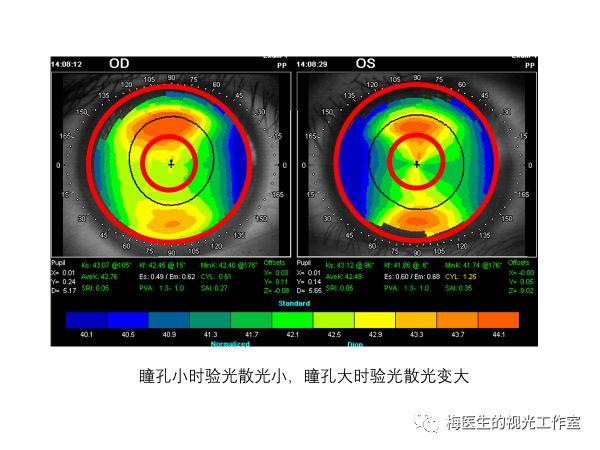 为什么扩瞳验光后近视度数反而更高了?