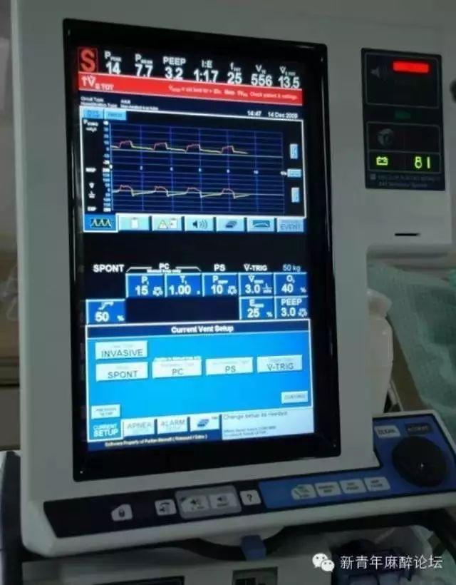 如何解读机械通气病人二氧化碳波形?这里总结了......