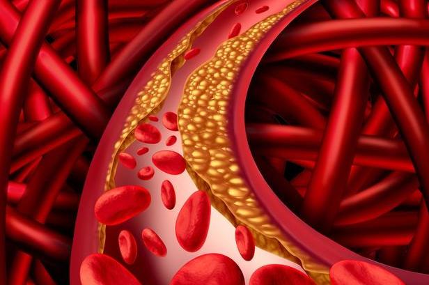 血管垃圾不除,遲早得腦梗,每天飯後喝1水,血管幹凈,腦梗繞道