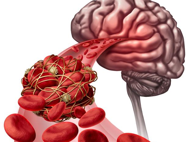 腦血管被垃圾堵死,會給腦梗穿空子,常喝1水,沖走垃圾,阻腦梗
