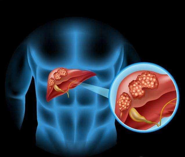 蜂蜜适合肝癌各阶段 促进肝组织修复再生 提高抗感染水平