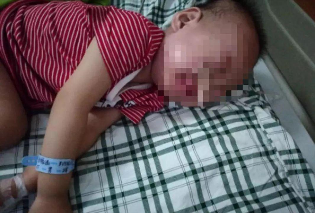 揪心!成都2岁幼童误吞电池近20天,妈妈没发现还一直当成胃病医!