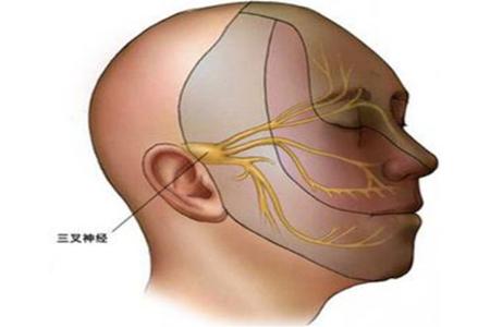 三叉神经痛患者卡马西平怎么吃可以降低并发症?