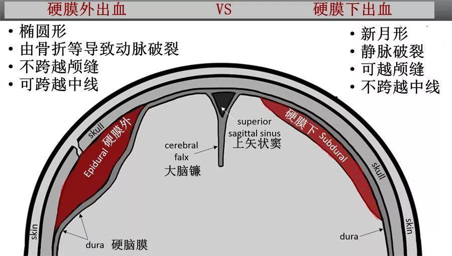 囹�9�%9�._4. 该患者具有急性和慢性硬膜下出血的特征.