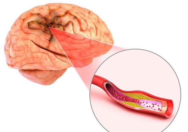 血管堵塞,下一步是腦梗,4食物加水煮沸喝,血管通暢,阻擋腦梗