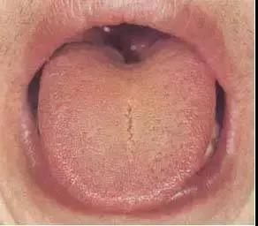 舌尖上的秘密 哪些疾病征兆能从舌头上看出来图片