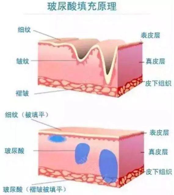 玻尿酸的原理是什么_玻尿酸的原理